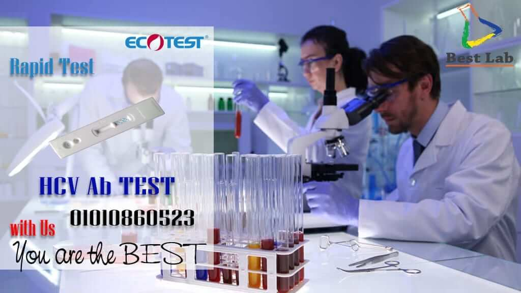 ECOTEST Virus C Rapid Test